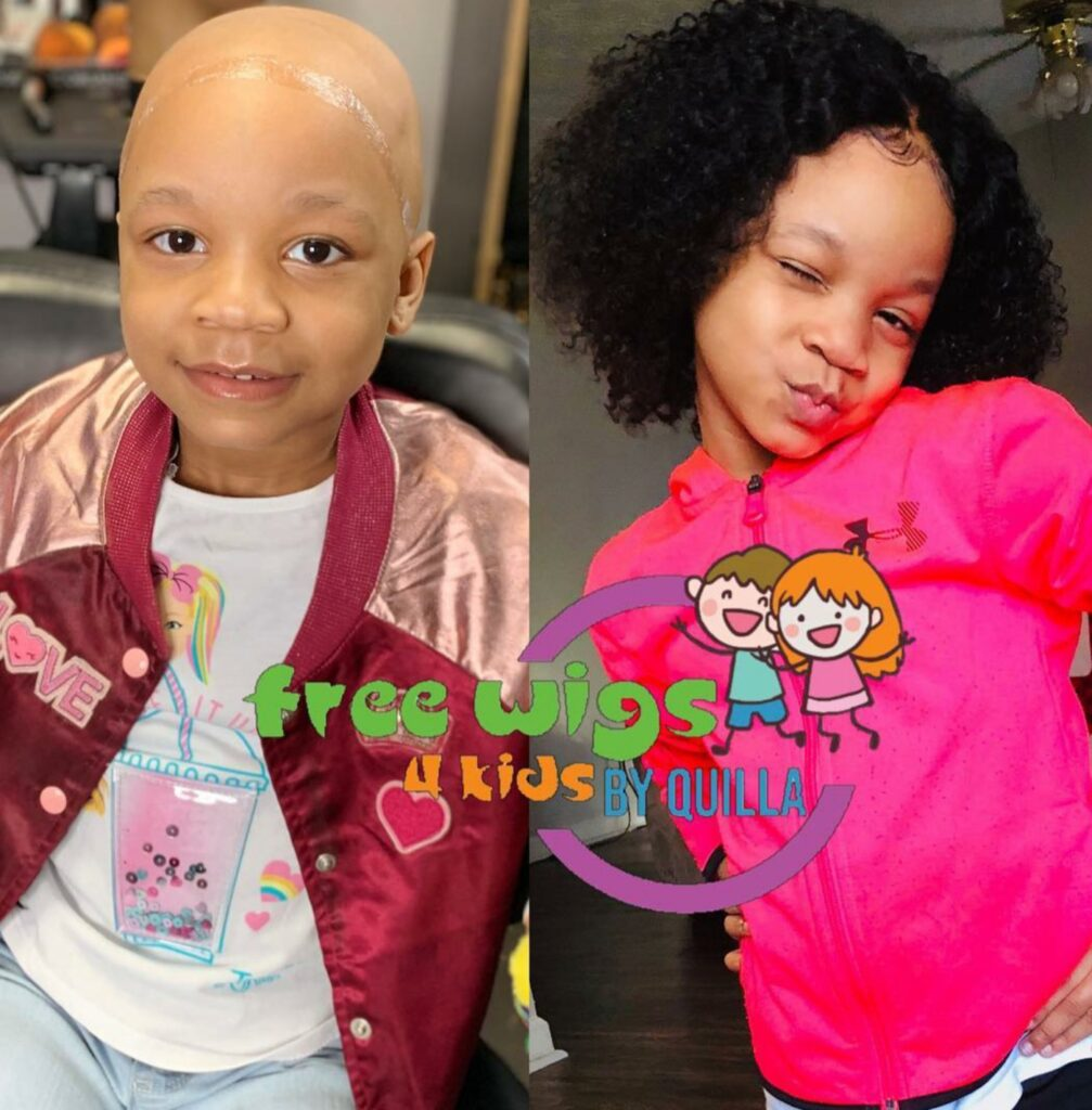 Young girl poses for before and after picture, before with bald head after with custom curly wig.